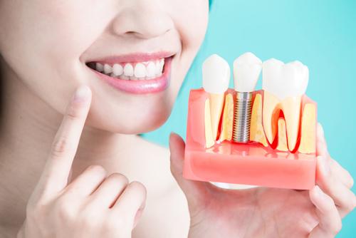 chirurgie des dents tunisie