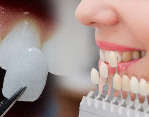 Le meilleur traitement pour les dents fissurées ou cassées